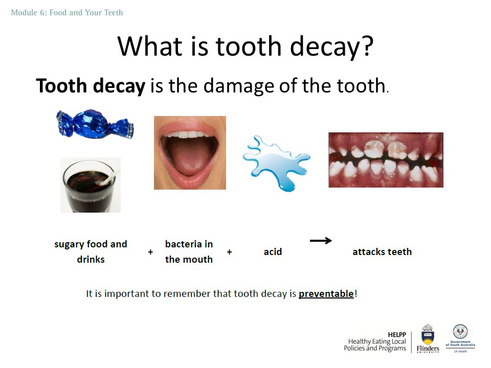 What is tooth decay Tooth decay is the damage of the tooth.