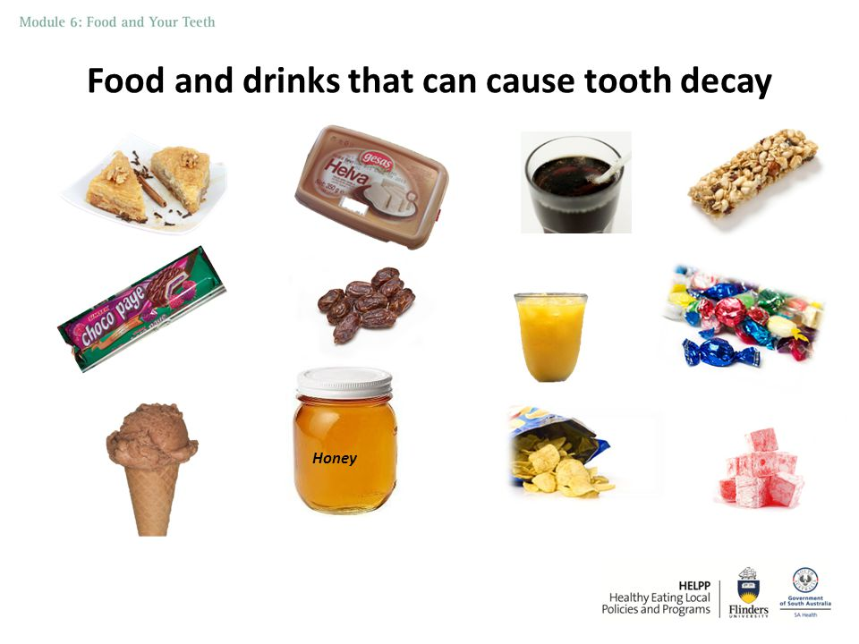 Factors that increase the risk of tooth decay 1.Bacteria and teeth 2.