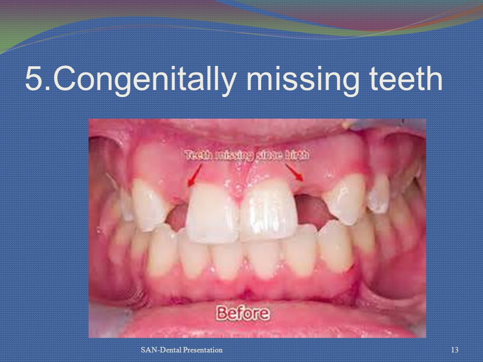 5.Congenitally missing teeth SAN-Dental Presentation13