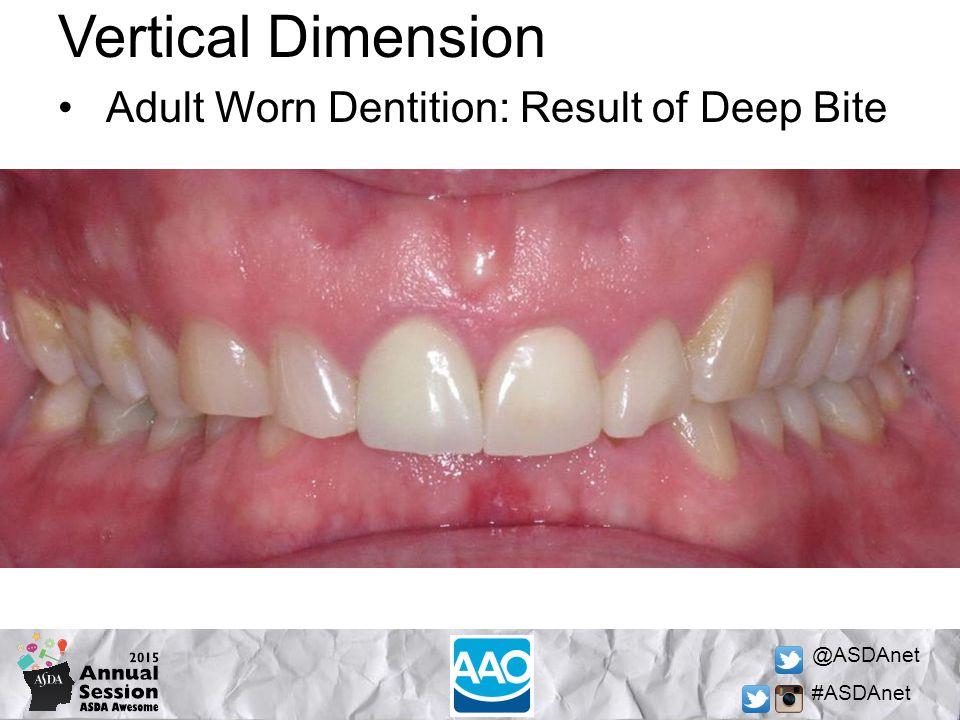 @ASDAnet #ASDAnet Vertical Dimension Adult Worn Dentition: Result of Deep Bite