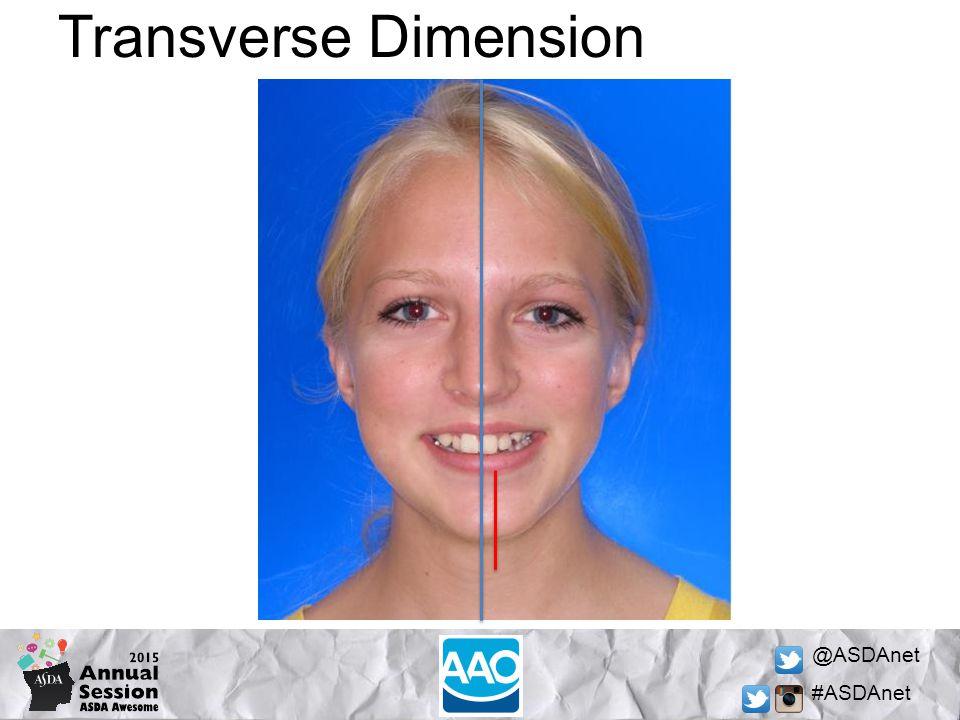 @ASDAnet #ASDAnet Transverse Dimension