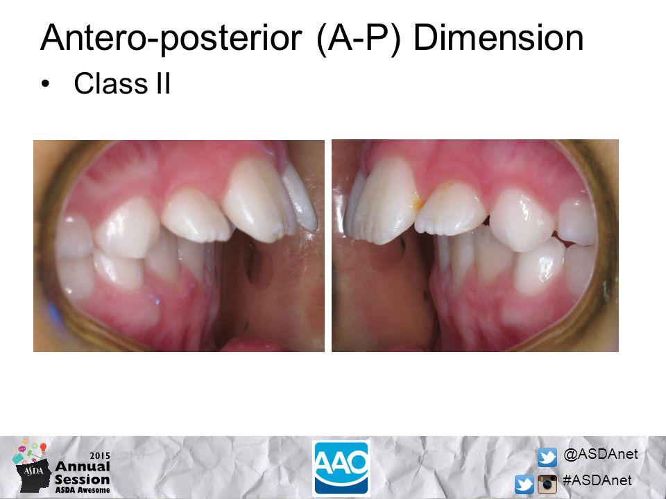 @ASDAnet #ASDAnet Antero-posterior (A-P) Dimension Class II