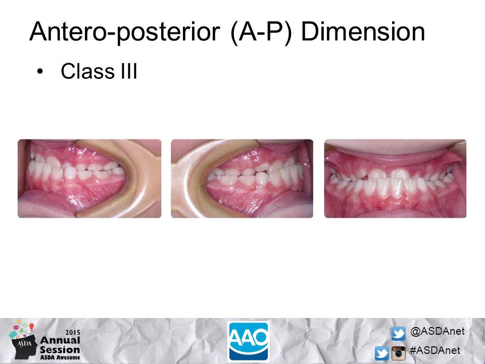 @ASDAnet #ASDAnet Antero-posterior (A-P) Dimension Class III