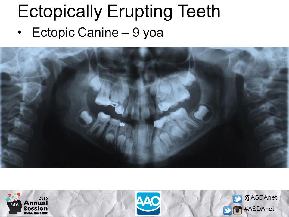 @ASDAnet #ASDAnet Ectopically Erupting Teeth Ectopic Canine – 9 yoa