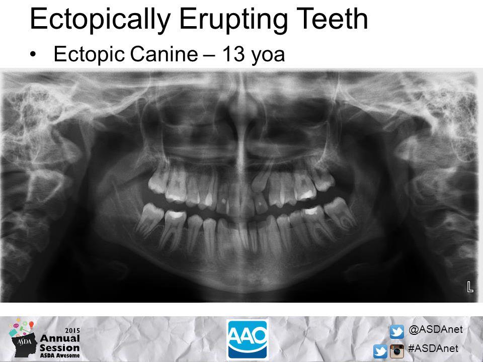 @ASDAnet #ASDAnet Ectopically Erupting Teeth Ectopic Canine – 13 yoa