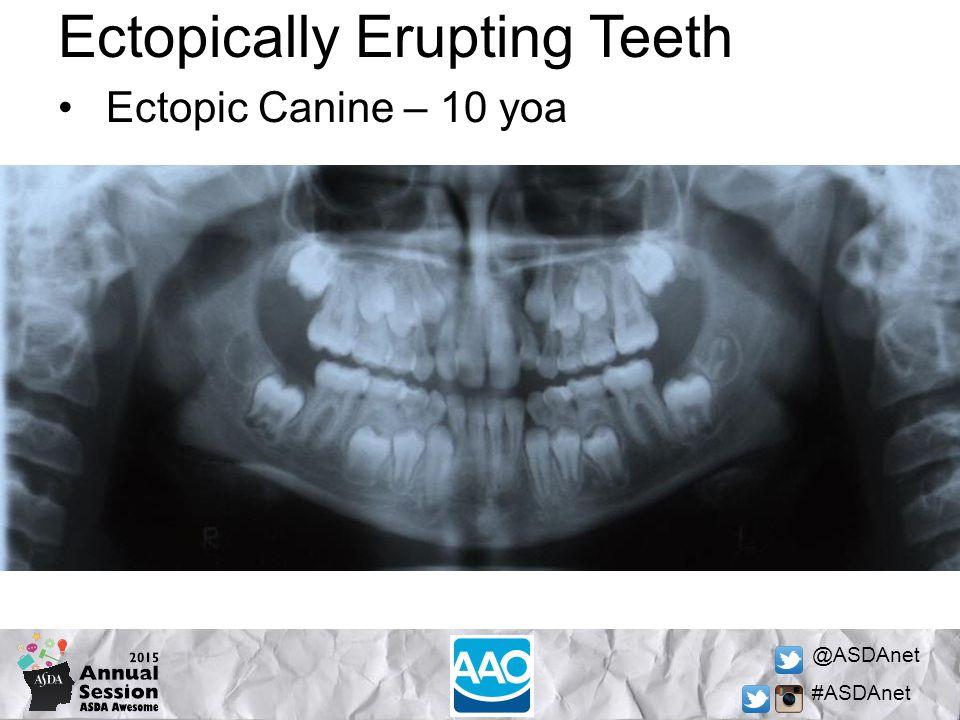 @ASDAnet #ASDAnet Ectopically Erupting Teeth Ectopic Canine – 10 yoa