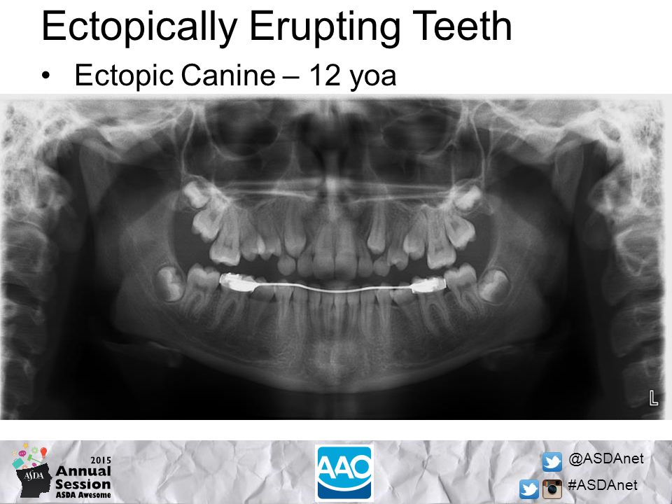 @ASDAnet #ASDAnet Ectopically Erupting Teeth Ectopic Canine – 12 yoa