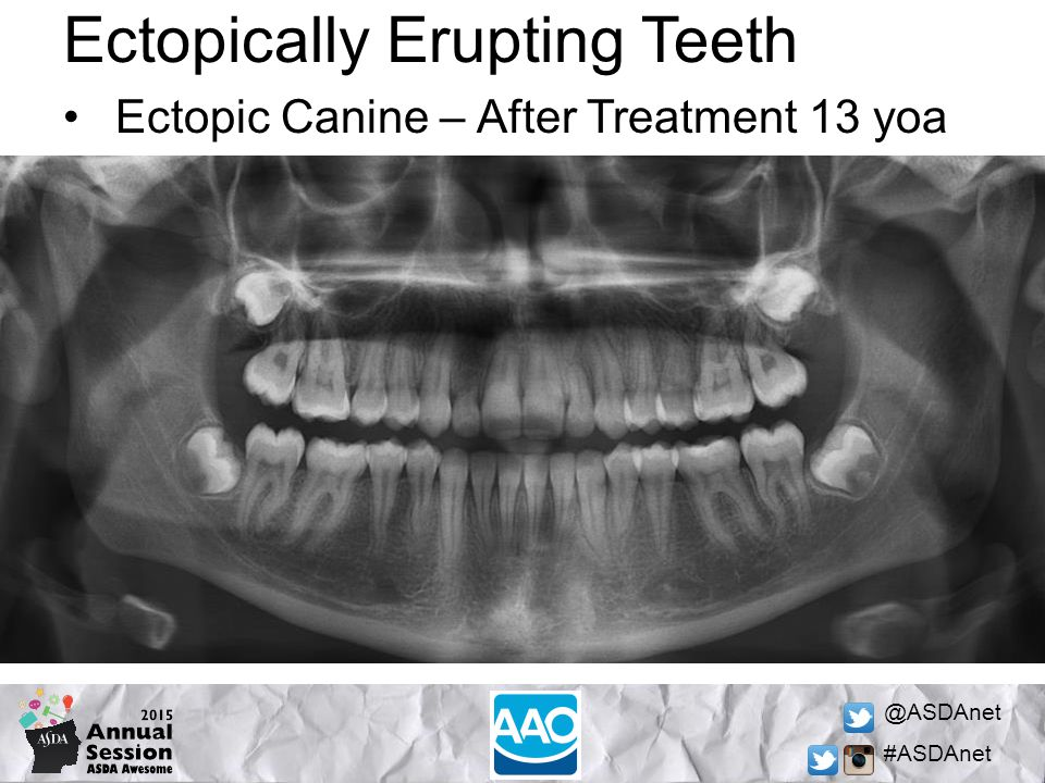 @ASDAnet #ASDAnet Ectopically Erupting Teeth Ectopic Canine – After Treatment 13 yoa