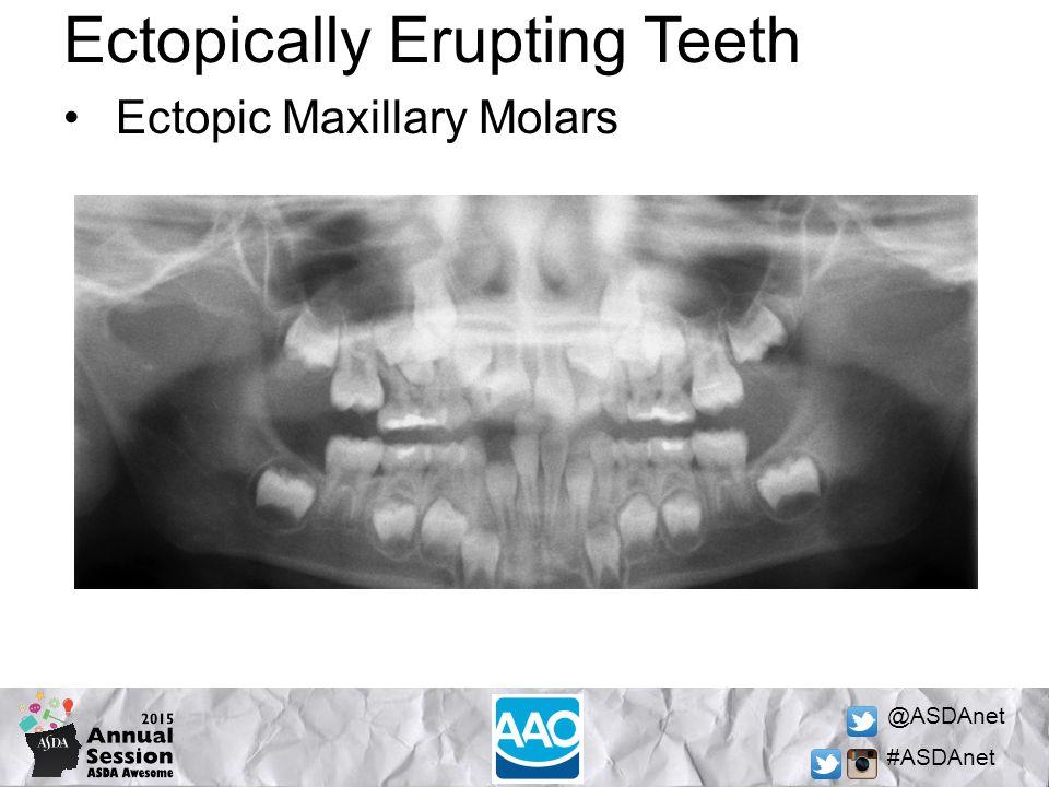 @ASDAnet #ASDAnet Ectopically Erupting Teeth Ectopic Maxillary Molars