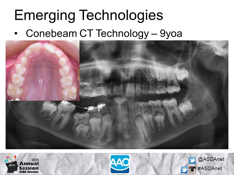 @ASDAnet #ASDAnet Emerging Technologies Conebeam CT Technology – 9yoa