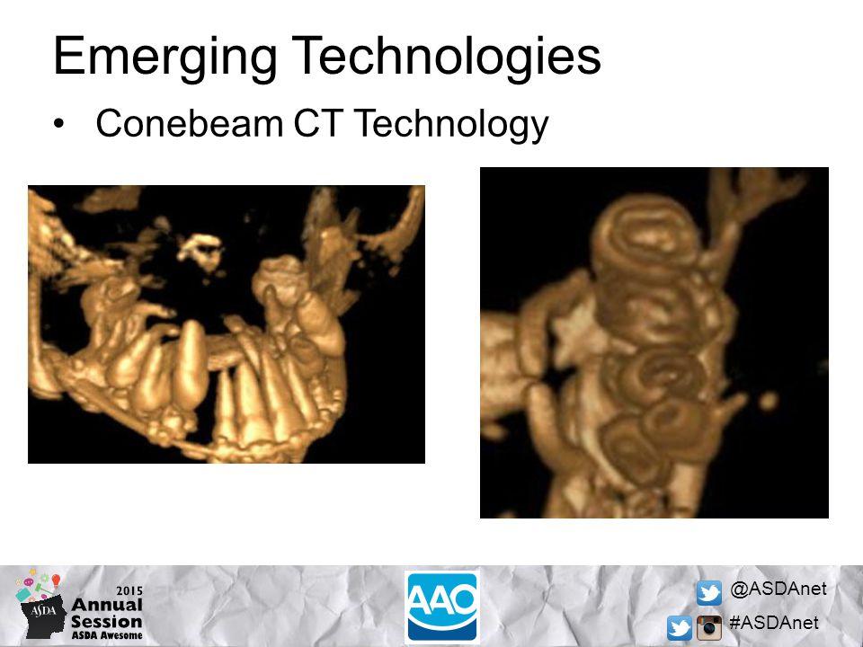 @ASDAnet #ASDAnet Emerging Technologies Conebeam CT Technology
