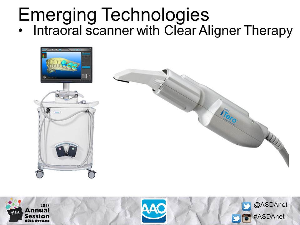 @ASDAnet #ASDAnet Emerging Technologies Intraoral scanner with Clear Aligner Therapy