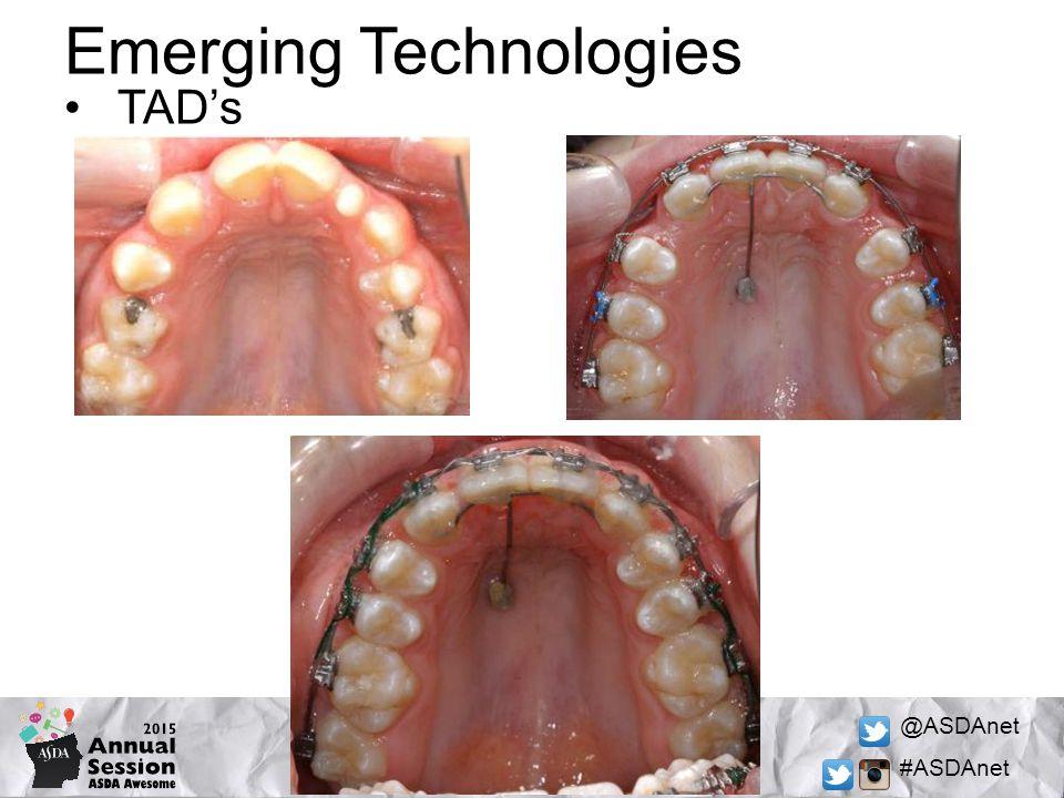 @ASDAnet #ASDAnet Emerging Technologies TAD's