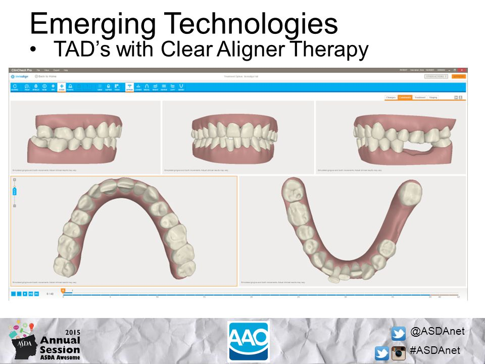 @ASDAnet #ASDAnet Emerging Technologies TAD's with Clear Aligner Therapy