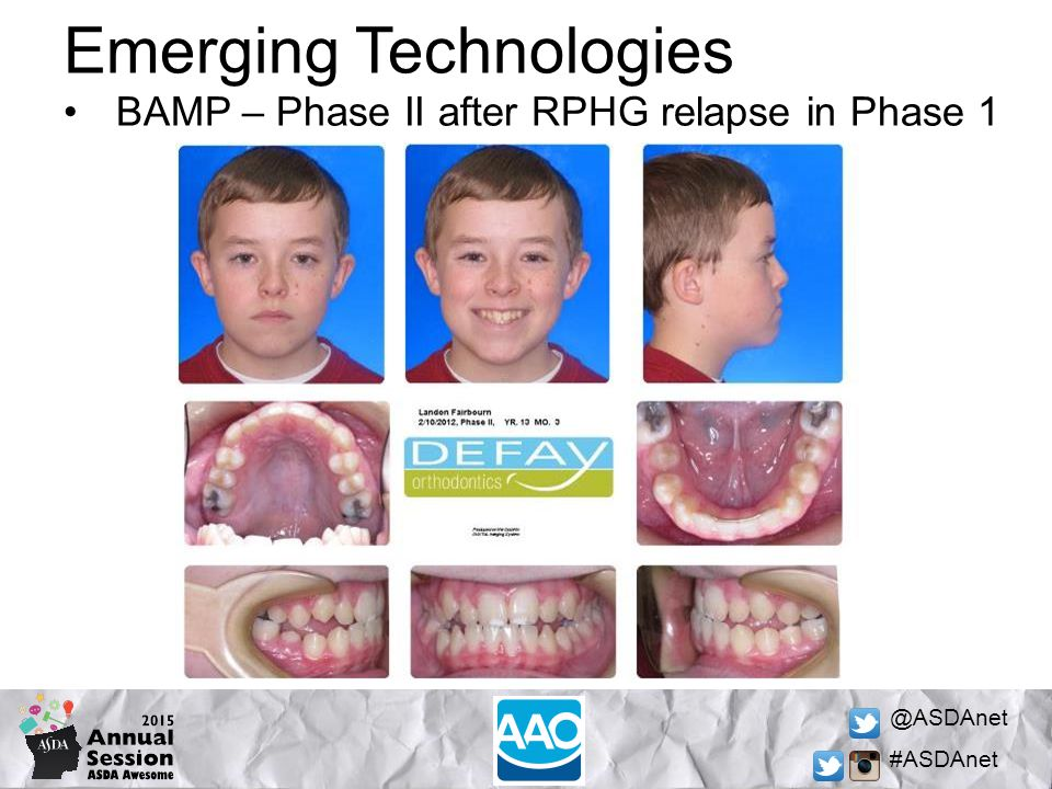 @ASDAnet #ASDAnet Emerging Technologies BAMP – Phase II after RPHG relapse in Phase 1