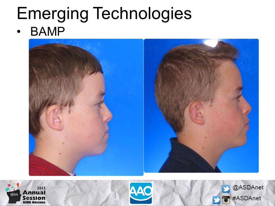 @ASDAnet #ASDAnet Emerging Technologies BAMP