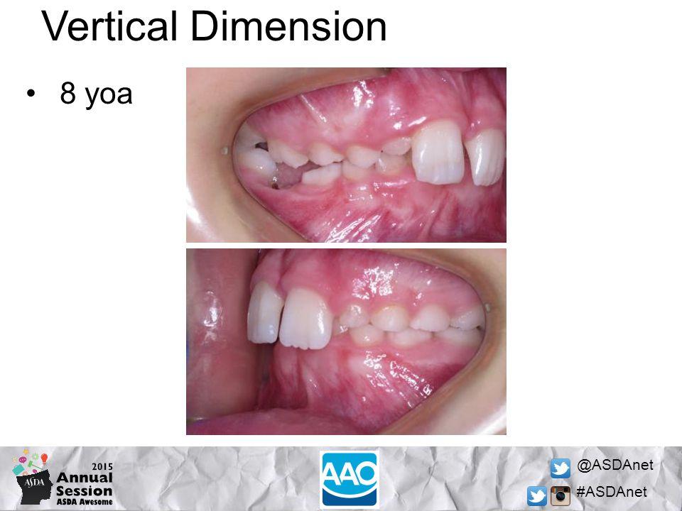 @ASDAnet #ASDAnet Vertical Dimension 8 yoa