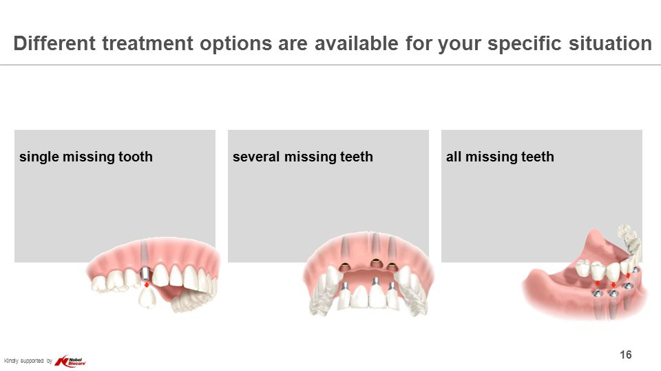 Kindly supported by Different treatment options are available for your specific situation 16 single missing toothseveral missing teethall missing teeth