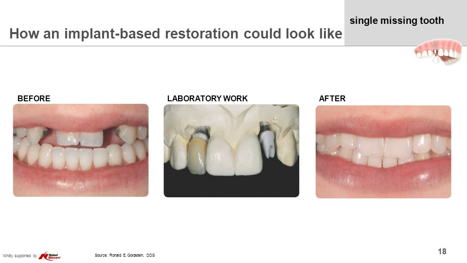 Kindly supported by single missing tooth How an implant-based restoration could look like 18 BEFORELABORATORY WORKAFTER Source: Ronald E.