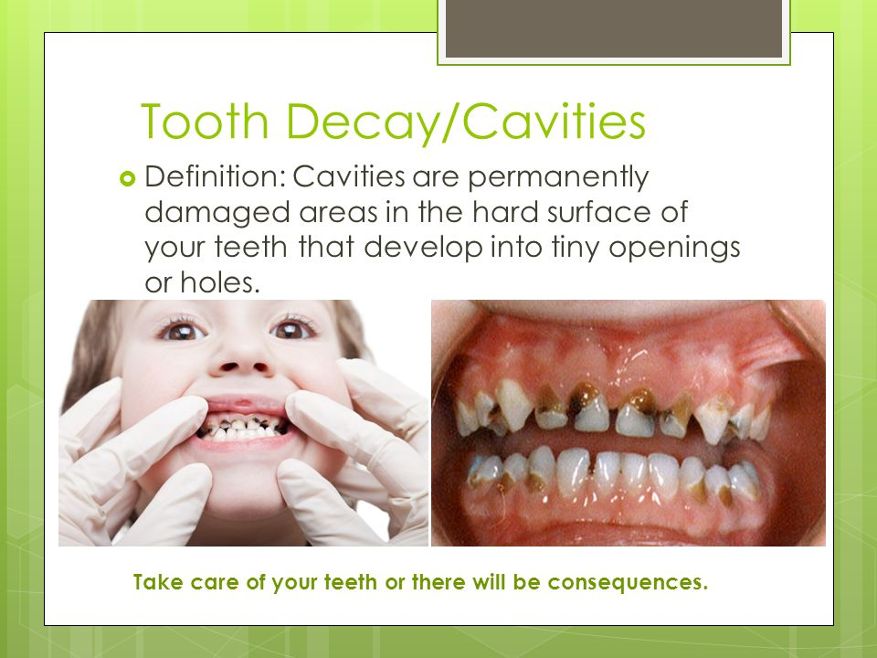 Tooth Decay/Cavities  Definition: Cavities are permanently damaged areas in the hard surface of your teeth that develop into tiny openings or holes.