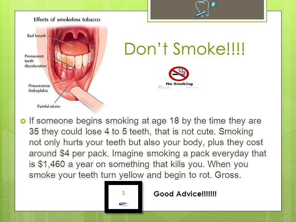  If someone begins smoking at age 18 by the time they are 35 they could lose 4 to 5 teeth, that is not cute.