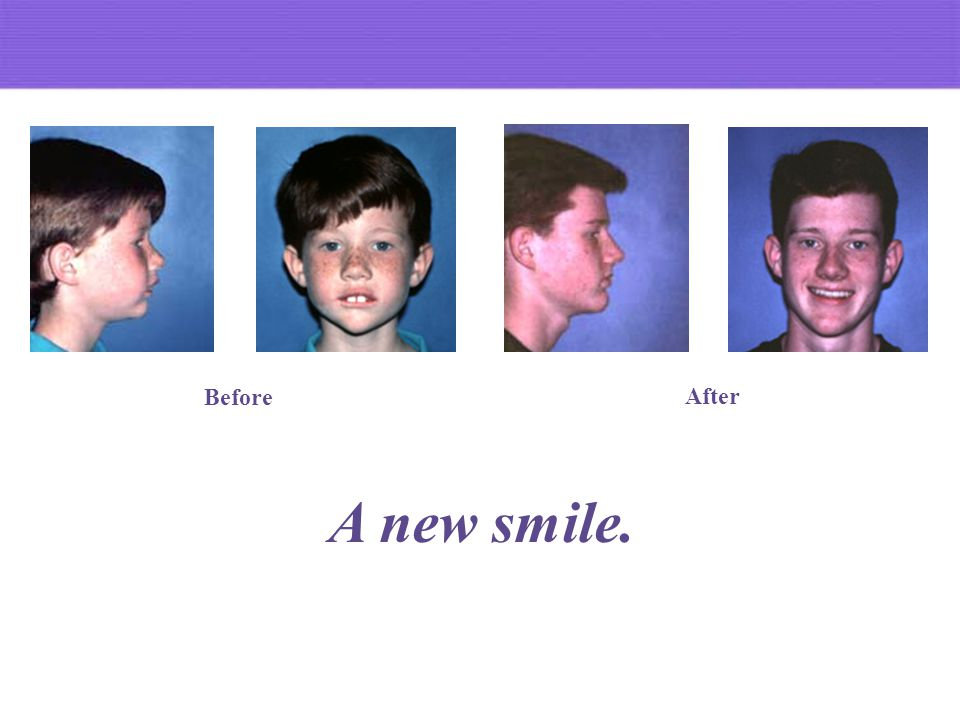 A new smile. Before After