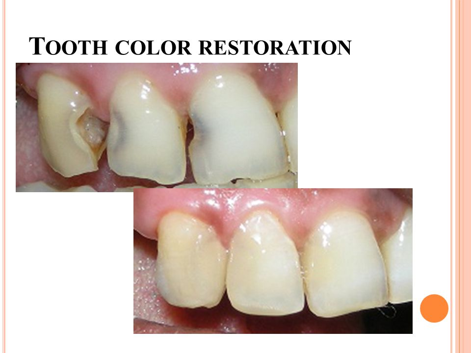 T OOTH COLOR RESTORATION