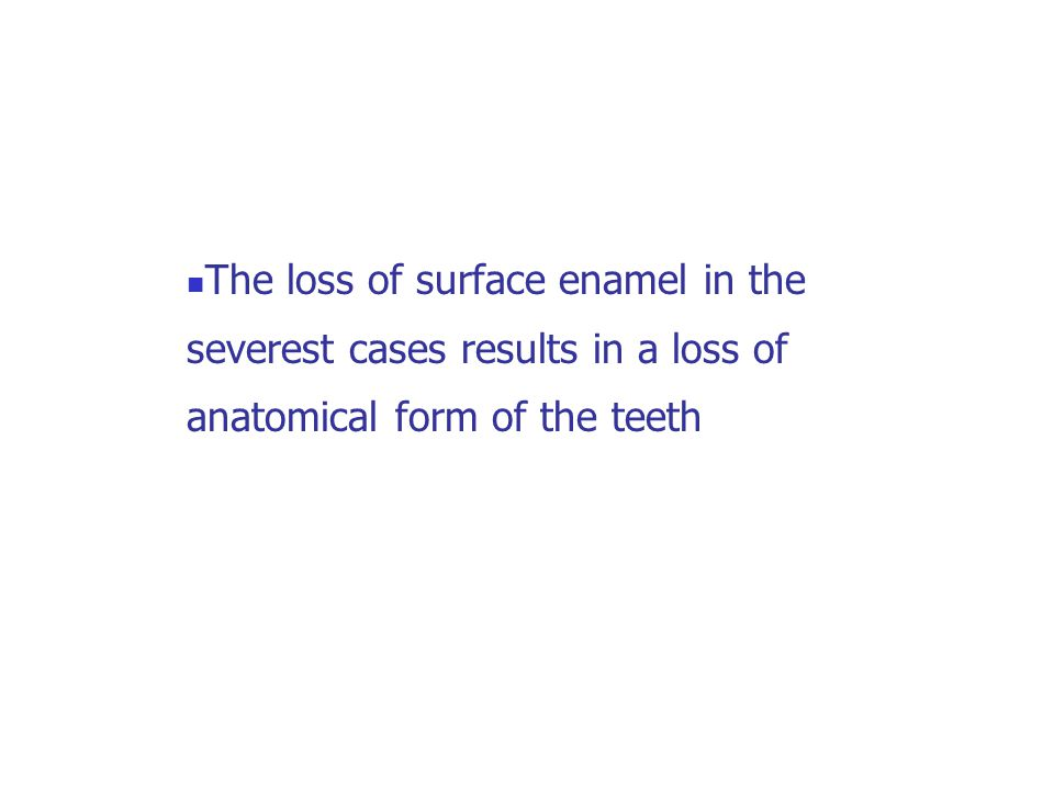 The loss of surface enamel in the severest cases results in a loss of anatomical form of the teeth
