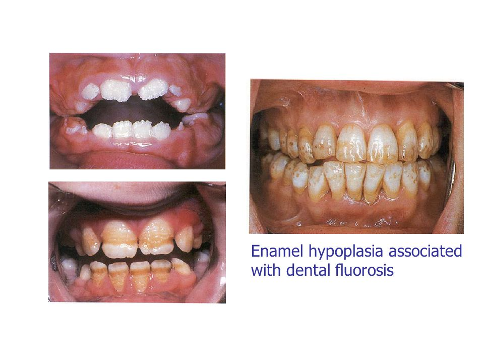 Enamel hypoplasia associated with dental fluorosis