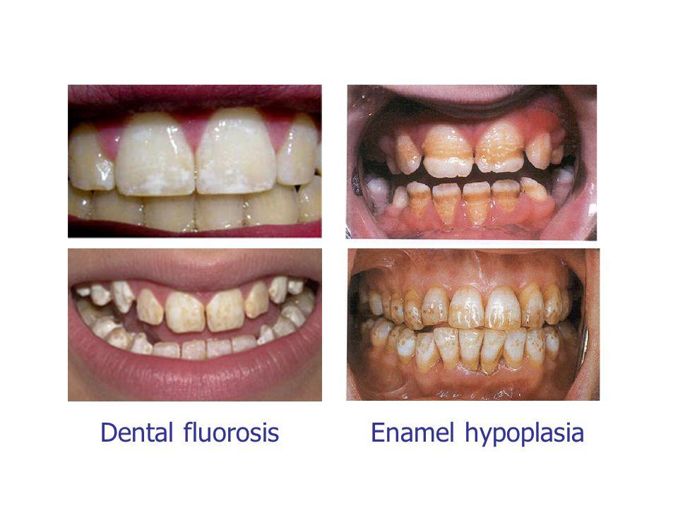 Dental fluorosis Enamel hypoplasia
