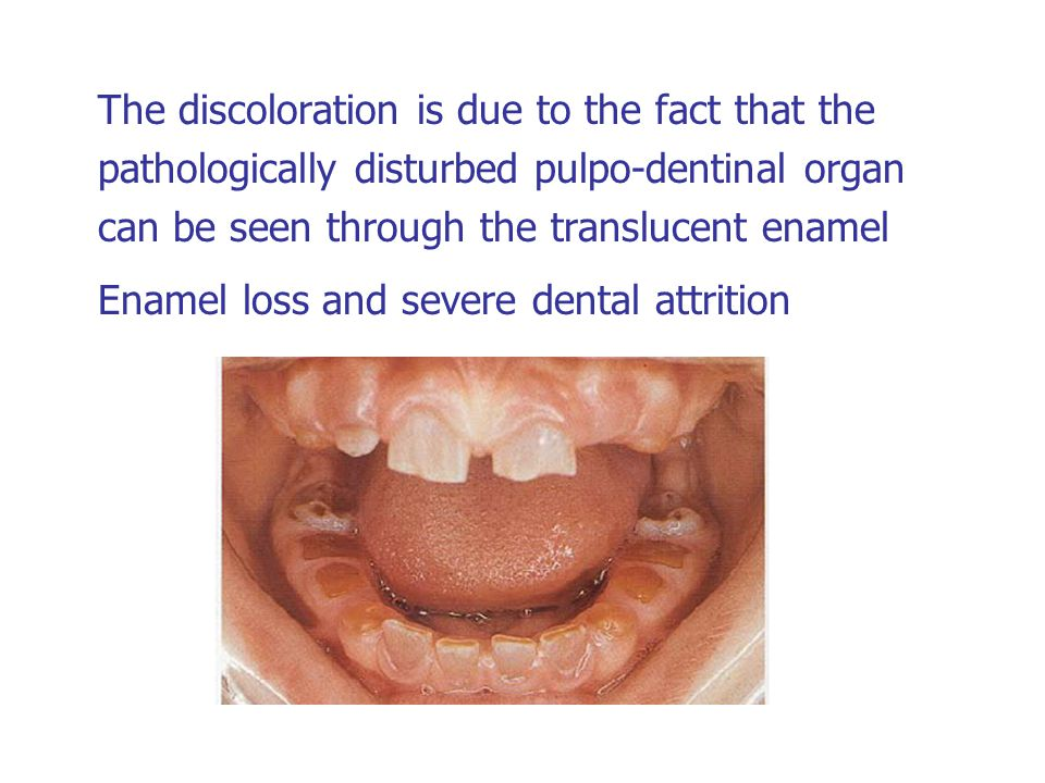 The discoloration is due to the fact that the pathologically disturbed pulpo-dentinal organ can be seen through the translucent enamel Enamel loss and severe dental attrition
