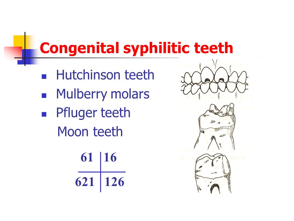 Congenital syphilitic teeth Hutchinson teeth Mulberry molars Pfluger teeth Moon teeth 61 16 621 126