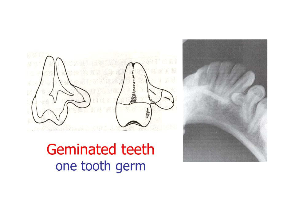 Geminated teeth one tooth germ