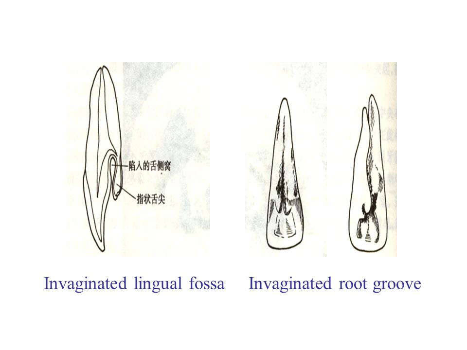 Invaginated lingual fossa Invaginated root groove