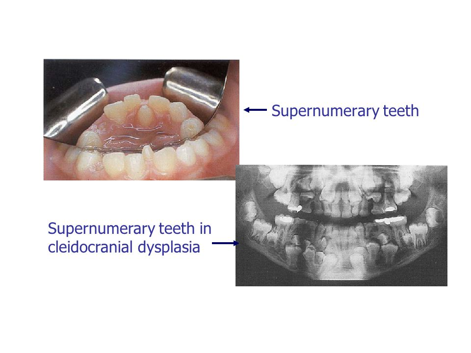 Supernumerary teeth in cleidocranial dysplasia
