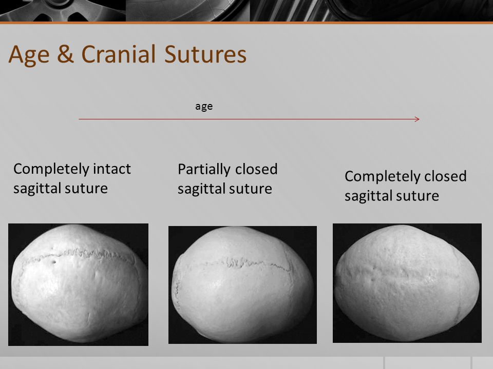 Age & Cranial Sutures Completely intact sagittal suture Partially closed sagittal suture Completely closed sagittal suture age
