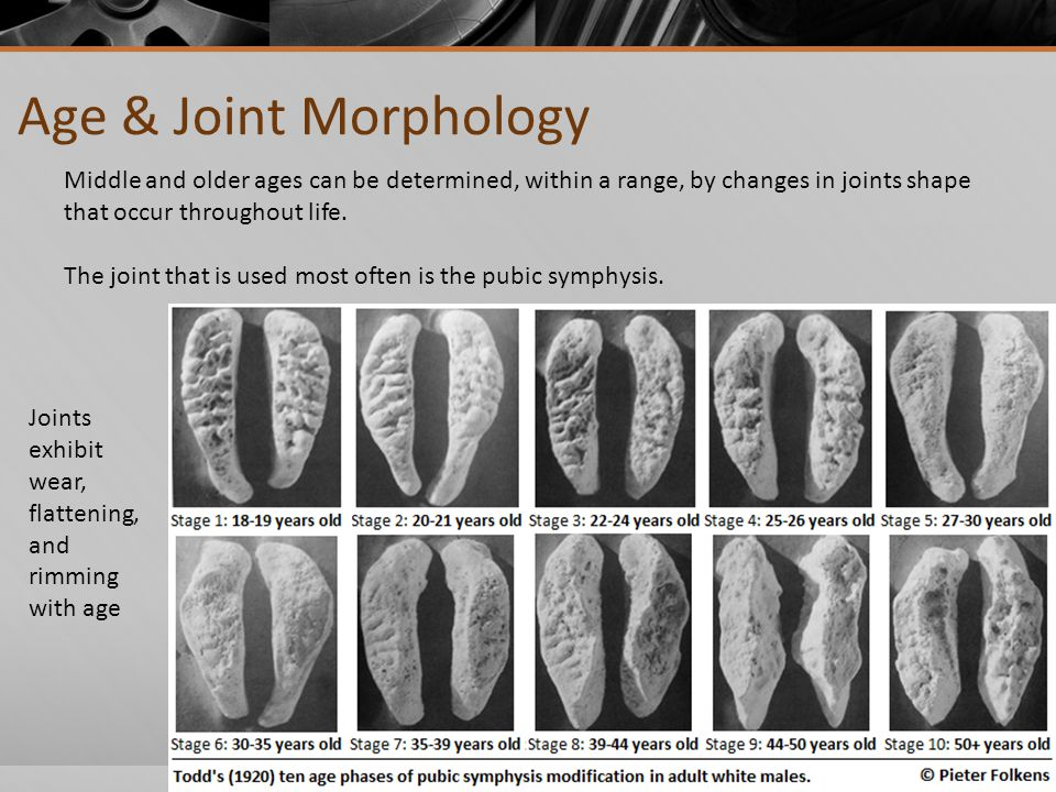 Age & Joint Morphology Middle and older ages can be determined, within a range, by changes in joints shape that occur throughout life.