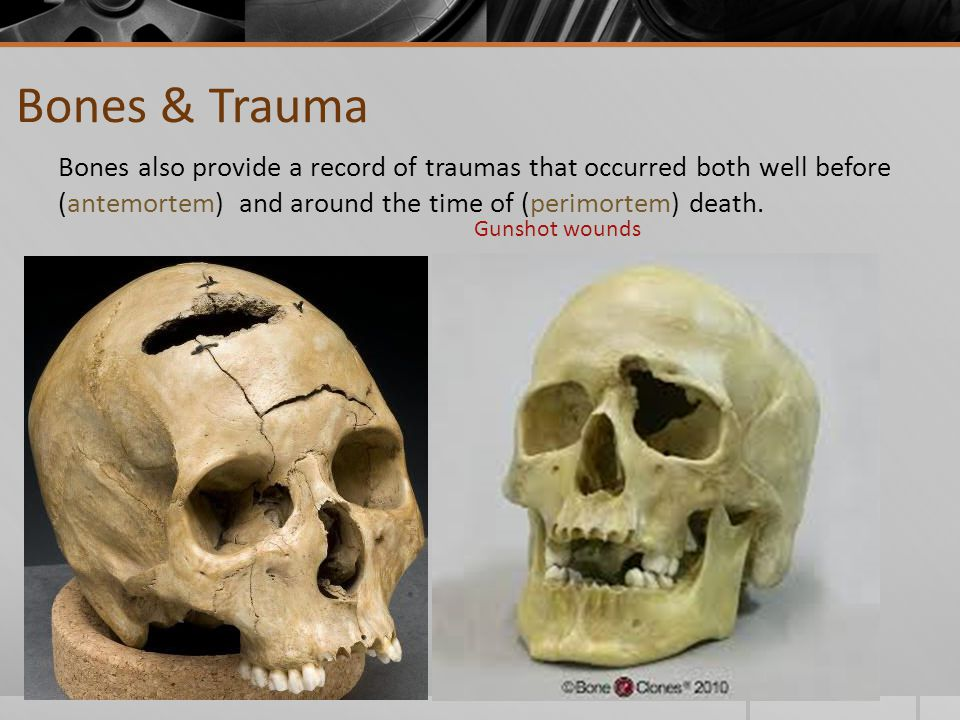 Bones & Trauma Bones also provide a record of traumas that occurred both well before (antemortem) and around the time of (perimortem) death.