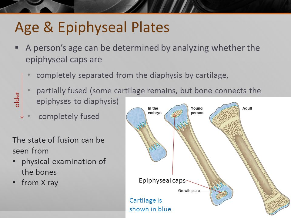 Age & Epiphyseal Plates  A person's age can be determined by analyzing whether the epiphyseal caps are completely separated from the diaphysis by cartilage, partially fused (some cartilage remains, but bone connects the epiphyses to diaphysis) completely fused Cartilage is shown in blue Epiphyseal caps The state of fusion can be seen from physical examination of the bones from X ray older