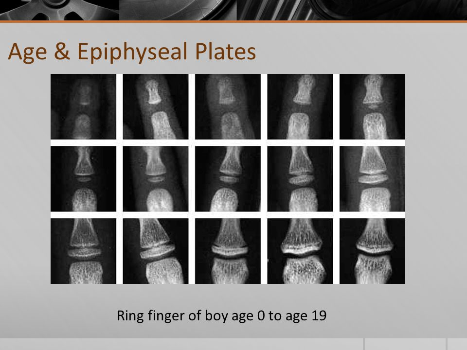 Ring finger of boy age 0 to age 19