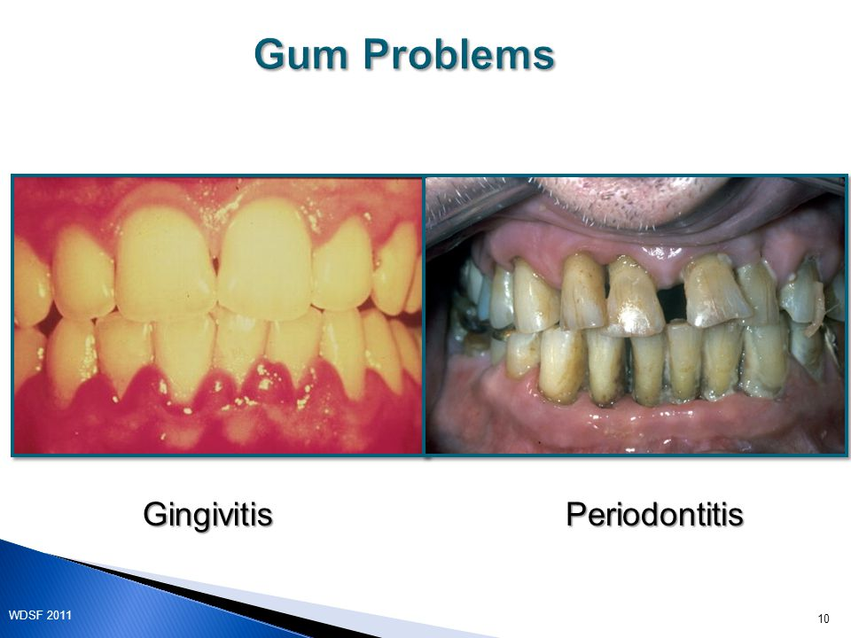 Gum Problems GingivitisPeriodontitis 10 WDSF 2011