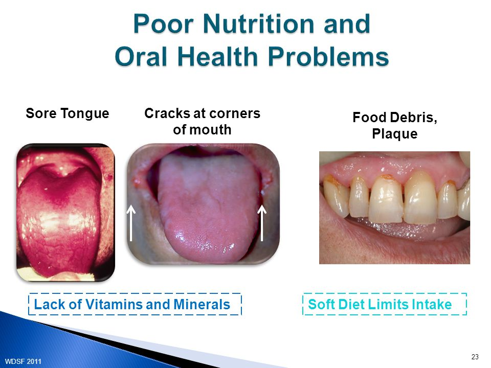 Lack of Vitamins and MineralsSoft Diet Limits Intake Sore TongueCracks at corners of mouth Food Debris, Plaque 23 WDSF 2011