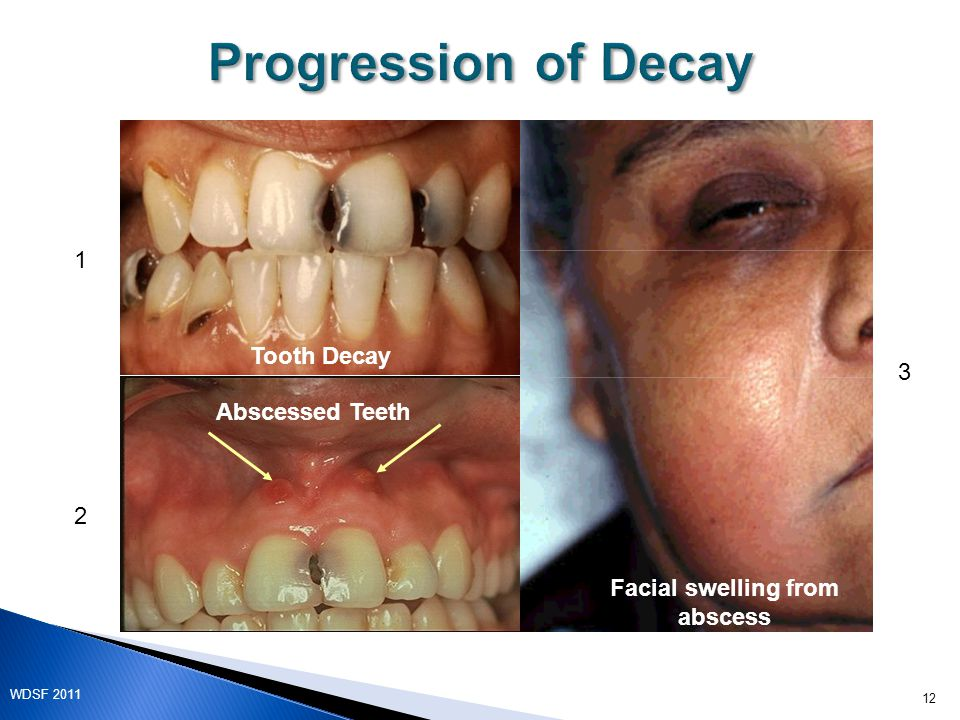 Tooth Decay Abscessed Teeth Facial swelling from abscess 1 2 3 12 WDSF 2011