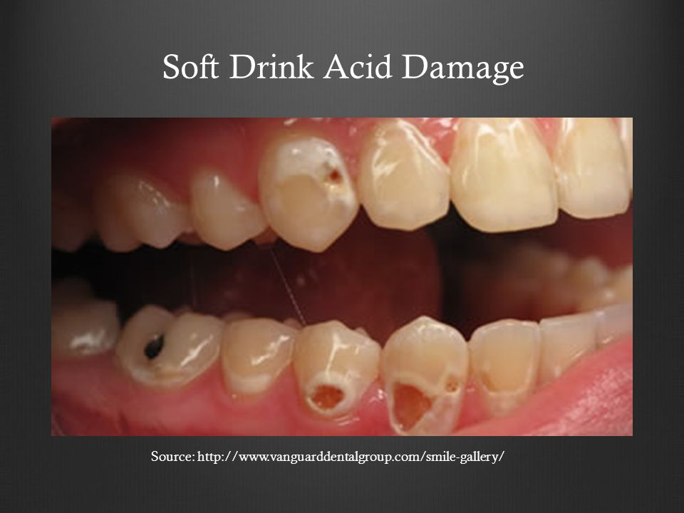 Source: http://www.vanguarddentalgroup.com/smile-gallery/ Soft Drink Acid Damage