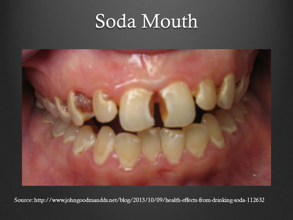 Soda Mouth Source: http://www.johngoodmandds.net/blog/2013/10/09/health-effects-from-drinking-soda-112632