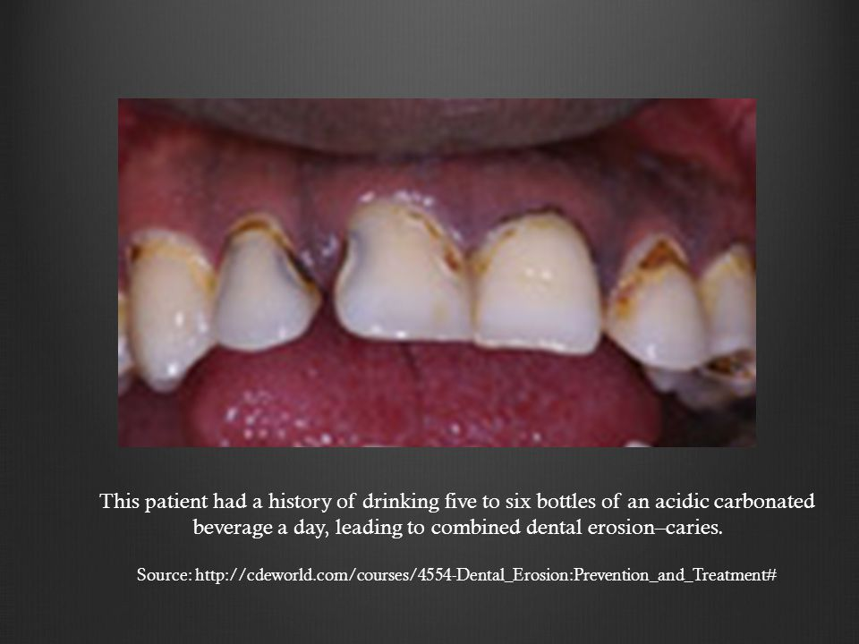 This patient had a history of drinking five to six bottles of an acidic carbonated beverage a day, leading to combined dental erosion–caries.