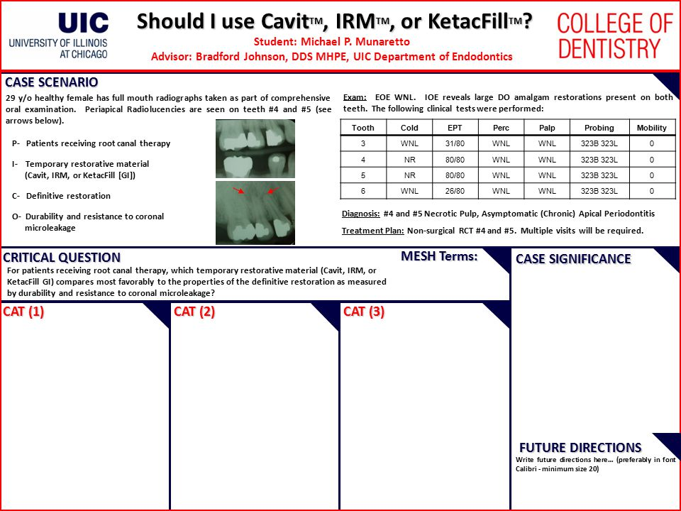 Should I use Cavit TM, IRM TM, or KetacFill TM .Student: Michael P.