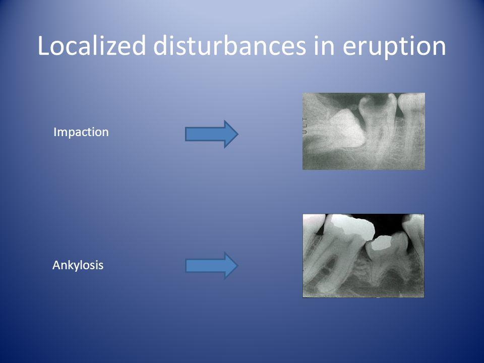 Localized disturbances in eruption Impaction Ankylosis