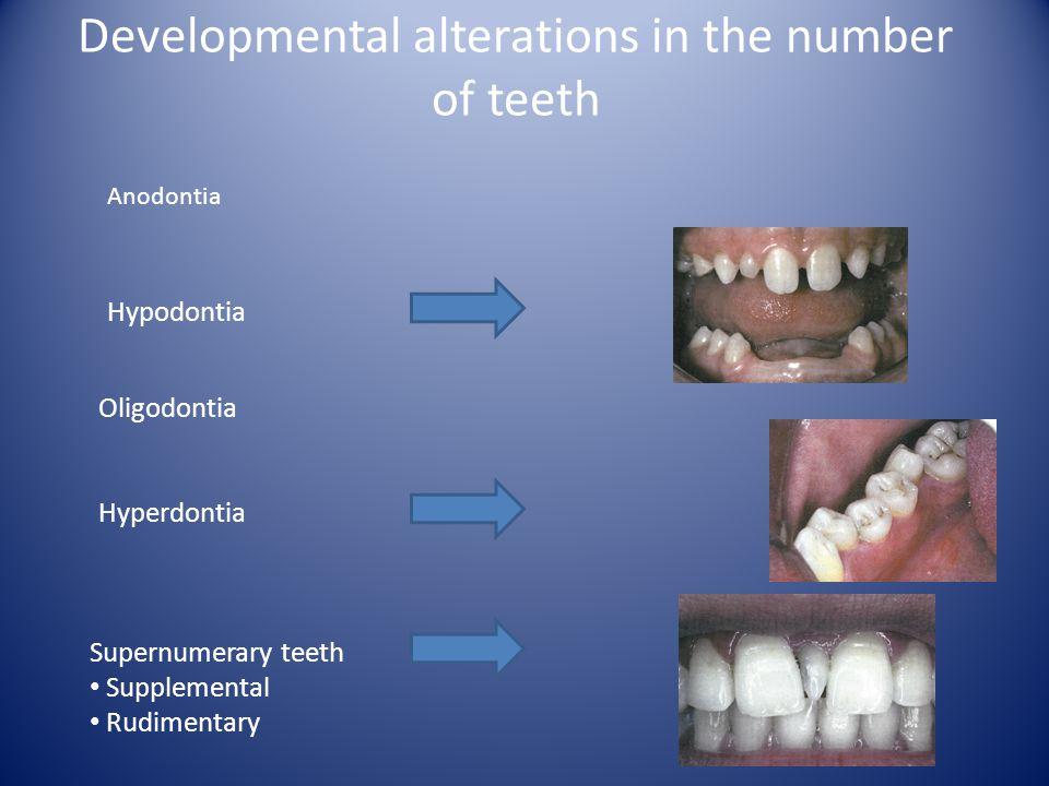 Developmental alterations in the number of teeth Anodontia Hypodontia Oligodontia Hyperdontia Supernumerary teeth Supplemental Rudimentary