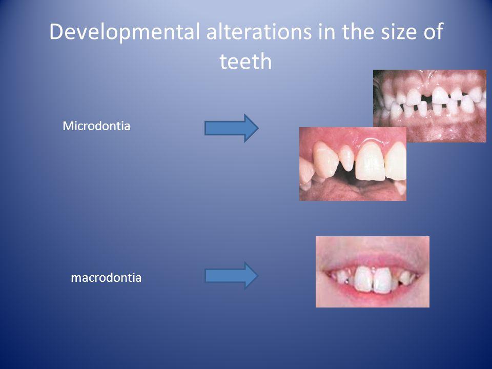 Developmental alterations in the size of teeth Microdontia macrodontia